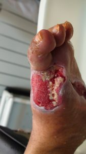 2-1Diabetic wound